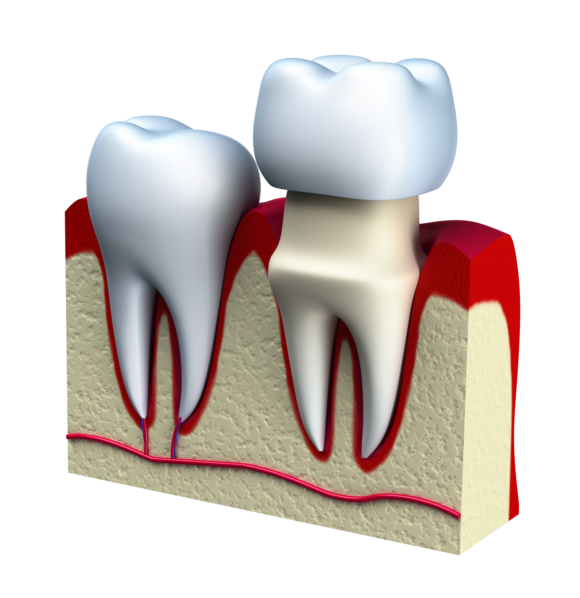 Who will place a tooth crown in Doral?