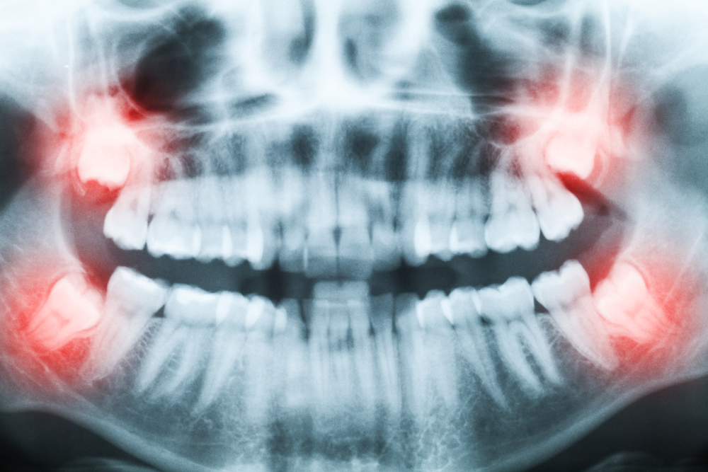 Can a Tricare dentist in Weston perform an extraction?